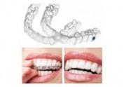 青岛开发区利群附近牙齿修复就看黄岛